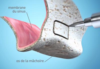Chirurgie pré implantaire - sinus lift