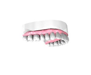 Implant dentaire Lyon
